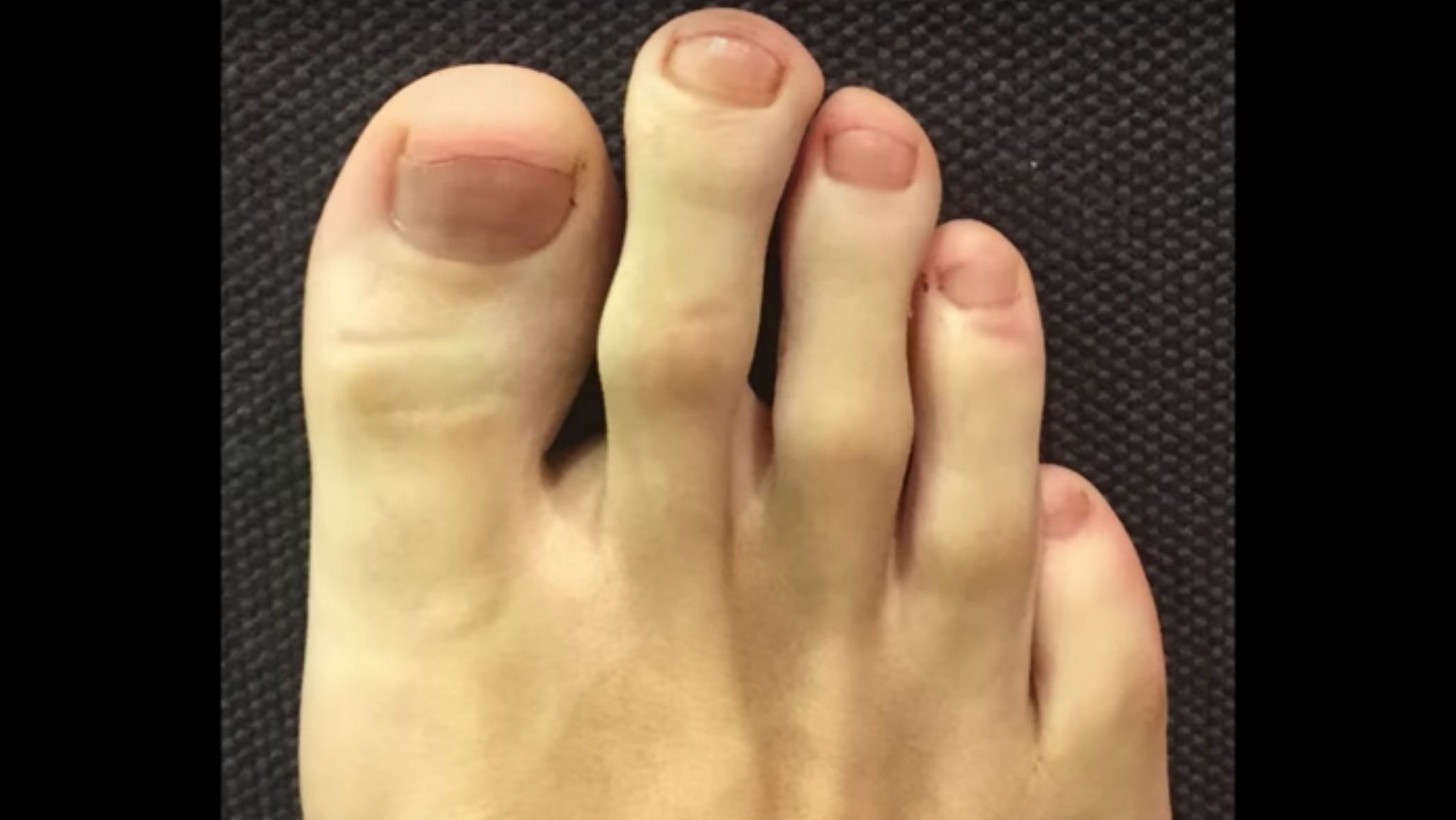 Watch Toe Deformities Should Be Treated Early: Experts video